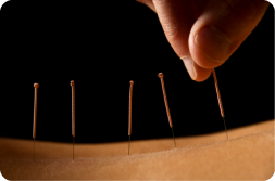 acupunture-closeup